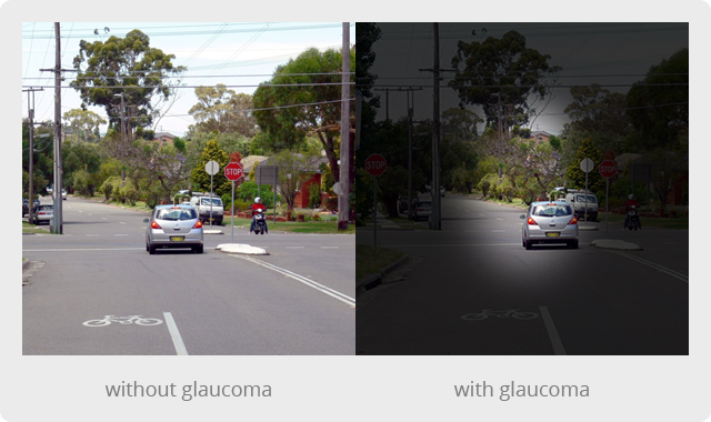 glaucoma-with-without