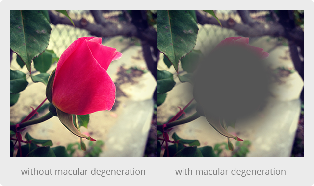 macular-with-without